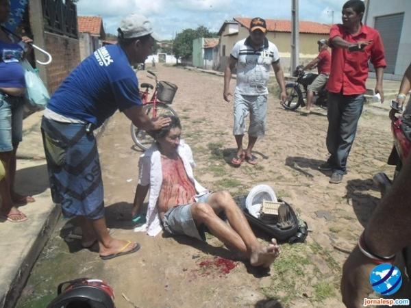 Motociclista bate de frente com caminhão e fica bastante ferido