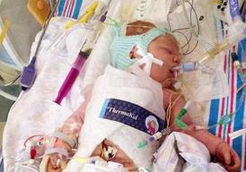 Bebê concebido após 9 anos de tentativas morre em uma semana