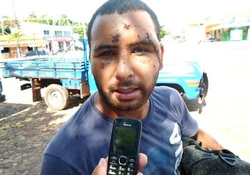 PI: Homem é brutalmente espancado e pode perder olho após rosto deformado