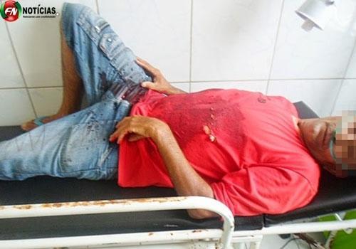 Sobrinho dispara vários tiros contra Tio no interior de Betânia do Piauí
