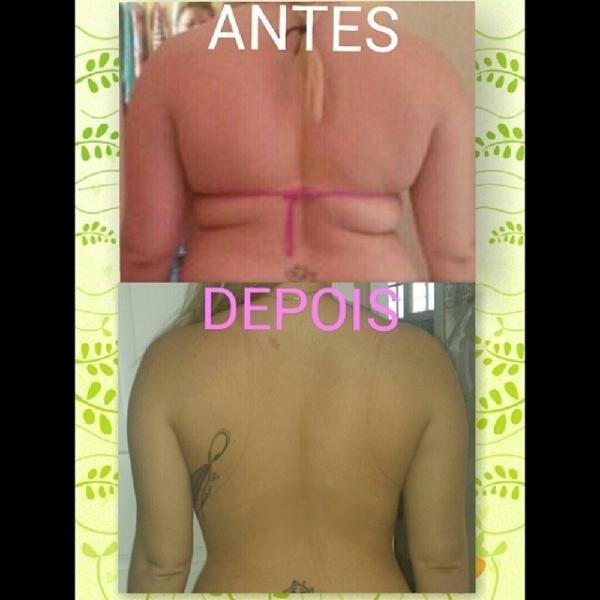 Ex-BBB Paulinha revela imagens do antes e depois de lipo nas costas; compare as fotos
