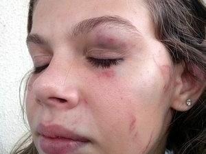 Adolescente espancada em escola é ameaçada: