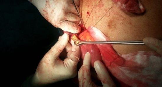 Após reclamar de dor de estômago, médicos fazem cirurgia em empresário indiano e encontram 12 barras de ouro