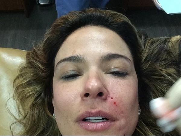 Luciana Gimenez aparece sangrando em tratamento est騁ico em Nova York