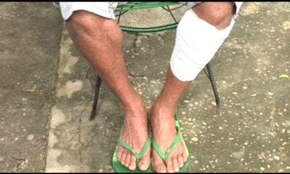 Homem espera por cirurgia após contrair bactéria