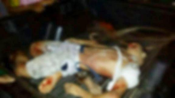 Soldado da PM sofre acidente, tem o p decepado e o corpo todo quebrado