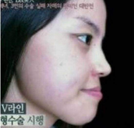 Mulher, após ser acusada pelo marido de ser feia e pedir divórcio, ganha uma plástica facial e se transforma