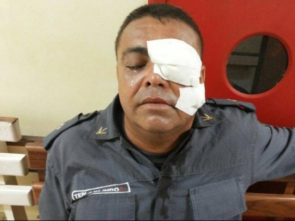PM atingido no olho por copo vai passar por transplante de córnea