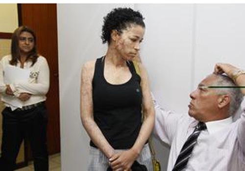 Mulher que jogou ácido em rival é presa em Salvador