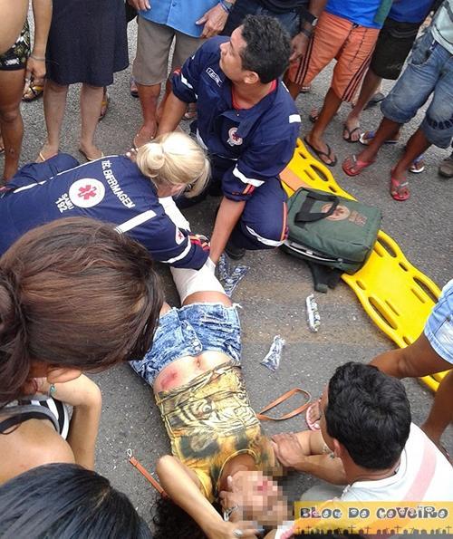 Colisão entre moto e carro na PI-213 deixa motociclista com fratura na perna