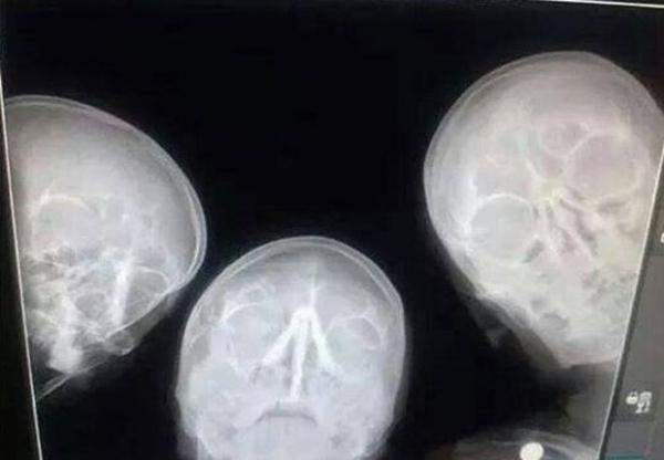 Trio de radiologistas inova ao fazer um