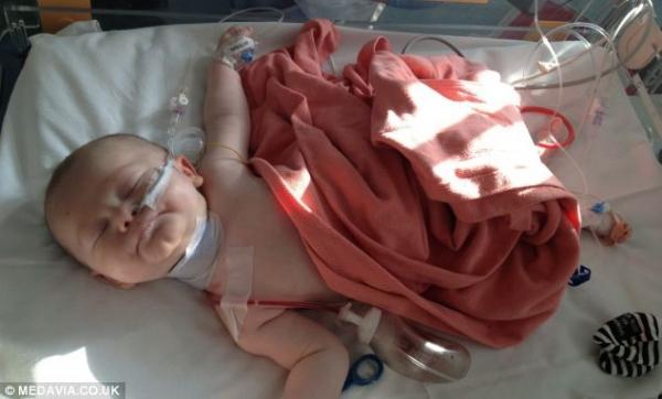 Bebê que nasceu com enorme cisto no ombro sobrevive e comemora seu primeiro ano de vida