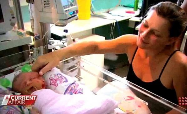 Médicos se impressionam com bebê que nasce com duas faces