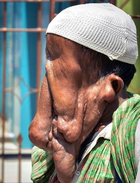 Homem se recusa a fazer cirurgia reconstrutiva para continuar recebendo esmolas por causa de sua aparência