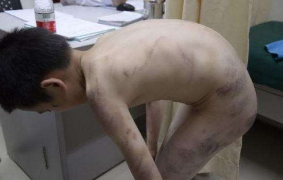 Menino de 10 anos cheio de hematomas após ser espancado por sua madrasta choca internautas