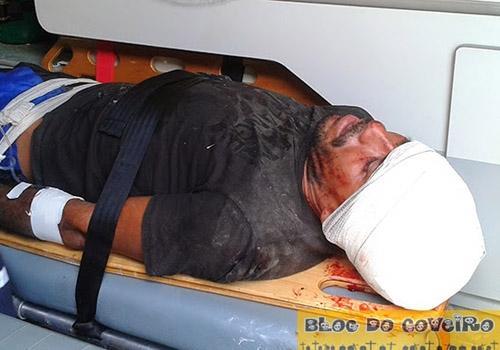 Homem fica gravemente ferido ao sofrer acidente de bicicleta no centro da cidade