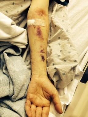 Ex-marido de Avril Lavigne é internado após fígado e rins falharem