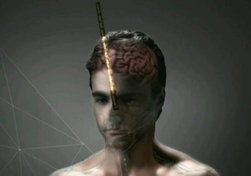 Brasileiro ferido por vergalhão é estudado por neurocientistas em NY