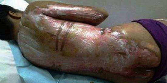 Empregada sofre queimadura horrível depois da mãe de seu patrão jogar água quente em seu corpo por não fazer o café
