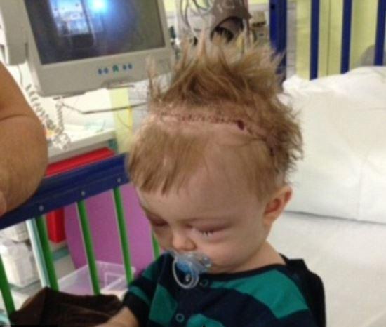 Criança, que nasceu com doença rara, teve seu crânio completamente cortado e montado como um quebra-cabeça