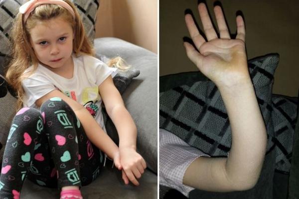 Médicos deixam menina com braço torto depois de engessarem membro de forma errada