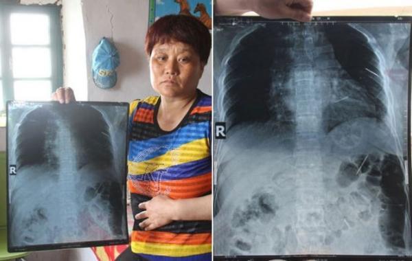 Mulher que sofreu por dez anos com dores agonizantes descobre agulhas e alfinetes espalhadas dentro de seu corpo