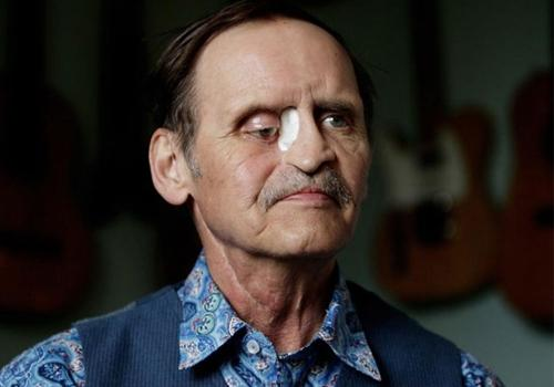 Homem com buracos no rosto aguarda cirurgia reconstrutiva há mais de dois anos