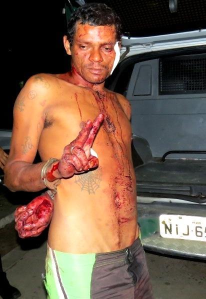 Homem agride desafeto com um violento golpe de gargalo de garrafa