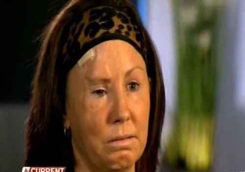 Mulher é espancada com um taco de baisebol e fica com rosto desfigurado