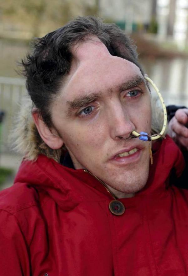 Bandido que atacou deficiente o deixando sem metade do crânio pega apenas 20 meses de prisão