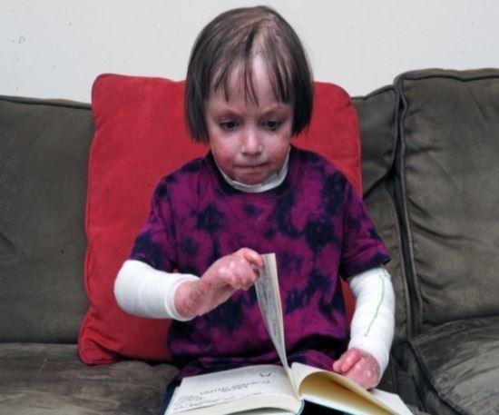 Menina de 6 anos sofre de doença rara que fez seus dedos colarem, além de soltar sua pele com o mínimo toque