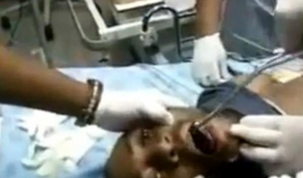 Vídeo: Momento angustiante onde médico retira um telefone celular da garganta de paciente