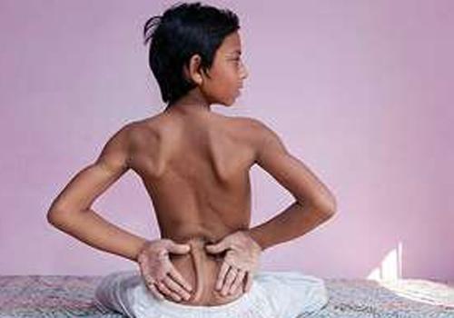Adolescente indiano é adorado como Deus por ter nascido com uma
