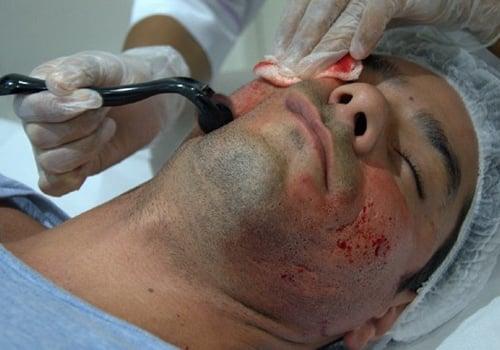 Diego Grossi se submete a tratamento doloroso para retirar cicatrizes