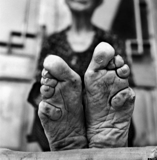 mulheres que se sujeitaram a esta prática dolorosa durante a juventude.