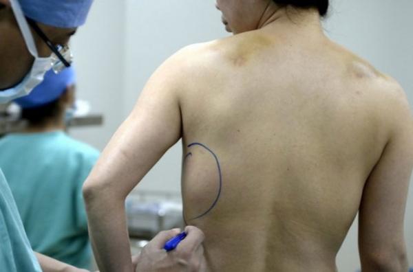 Mulher se surpreende ao acordar e perceber que sua prótese de silicone estava nas costas
