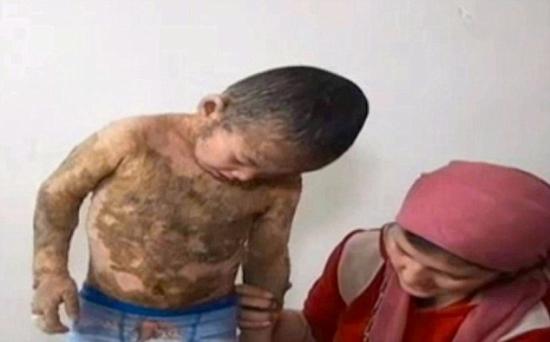 Garoto de cinco anos fica coberto de rígidas escamas devido a uma condição de pele terrível e rara