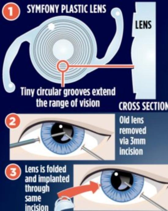 Implante de lente promete ser o fim dos óculos de leitura, fornecendo melhor foco aos olhos