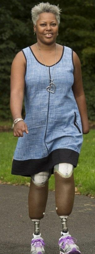Mulher perde pernas e mão ao inalar bactérias em uma viagem