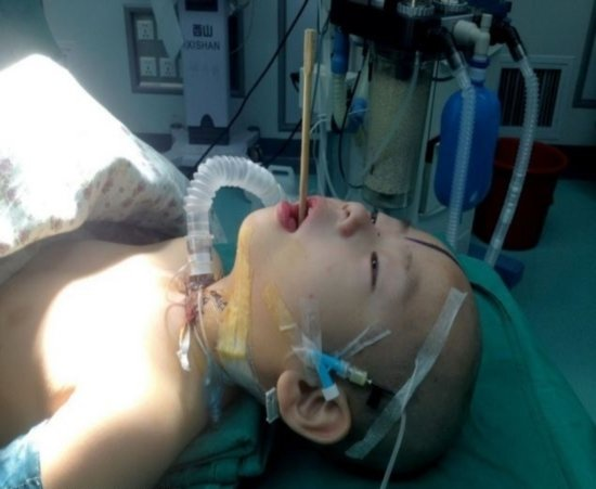 Criança chinesa fica com palito alojado em seu cérebro, depois de tropeçar e cair em cima dele, enquanto brincava com os amigos