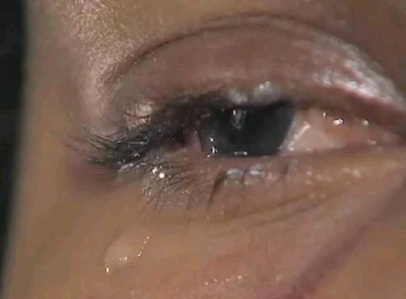 Marido esfaqueia e deixa mulher cega de um olho após ela usar seu xampu