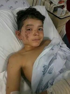 Mãe reanima o filho de nove anos após ele sofrer descarga elétrica