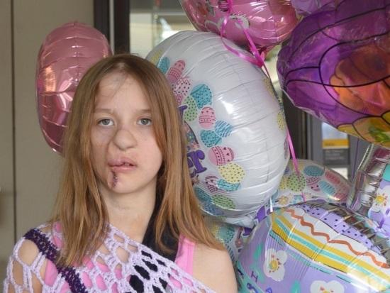 Garota atacada por um guaxinim deixa hospital com orelha fixada em seu antebraço