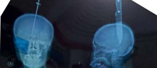 Mulher cai da escada e tem faca de 11 centímetros presa na cabeça