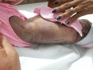 Após três semanas, CPC não conclui laudo de bebê cortado em parto no PA