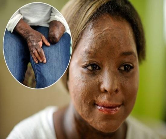 Garota de 17 anos amputou as duas pernas e um bra輟 ap madrasta colocar fogo em sua casa para matar seu pai