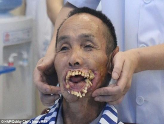 Homem  atacado por lobo na inf穗cia e recebe cirurgia corretiva ap 54 anos