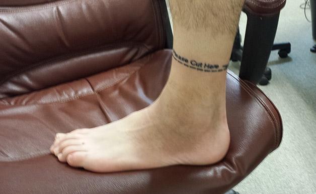 A forma como este homem encarou a necessidade de amputar a perna  uma verdadeira li鈬o de vida