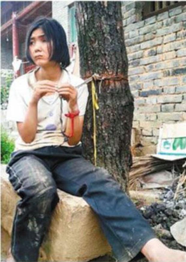 Pais deixam filha deficiente mental amarrada em árvore há mais de 20 anos