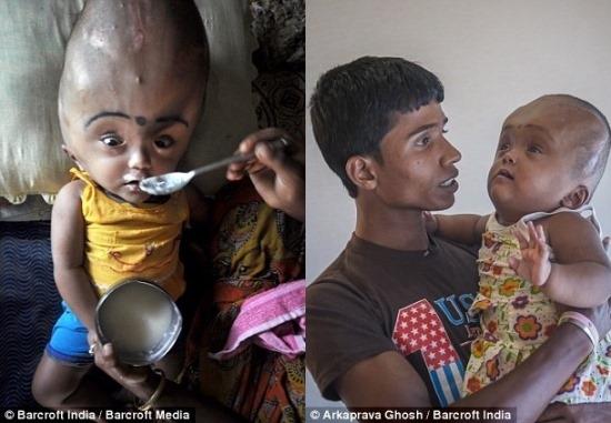 Criança com gravíssima hidrocefalia sorri, pela primeira vez, após conseguir operação que pode salvar sua vida